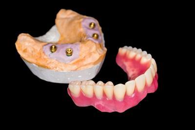 Implantatprothetik